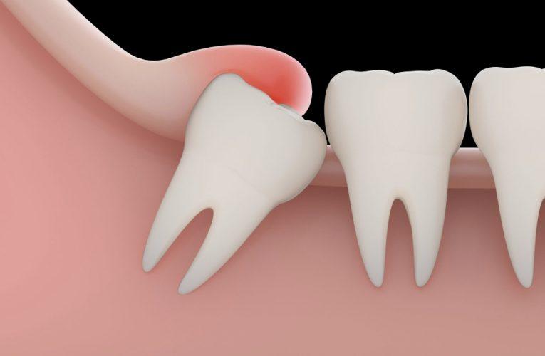[新聞] 三成人智慧齒阻生可致蛀牙及牙周病 智慧齒一定要拔?
