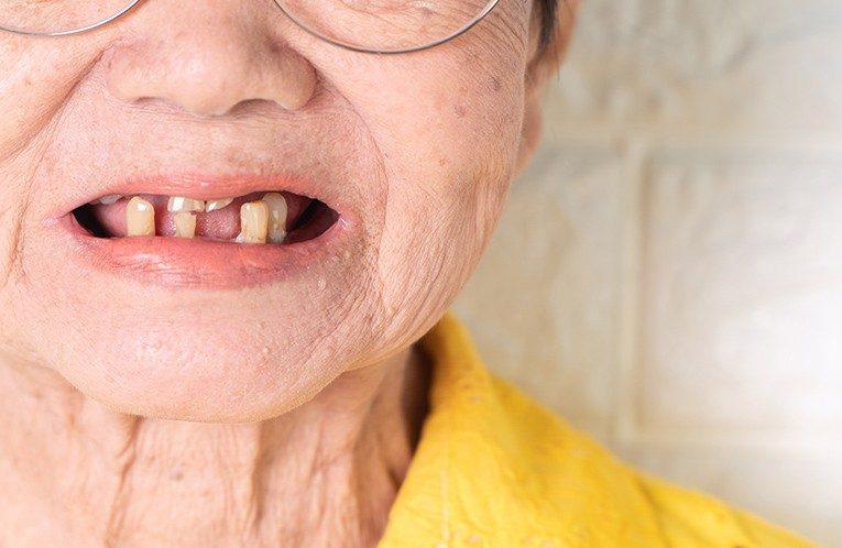 [新聞]長輩缺牙,還會缺掉健康!更安全舒適的全口重建,消除長輩「植牙恐懼症」