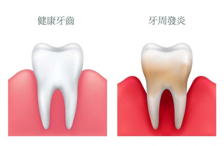 [新聞] 牙周病的症狀